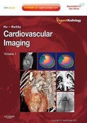 Cardiovascular-Imaging-2-Vol.-Set-(Hard-Back)_107765-36
