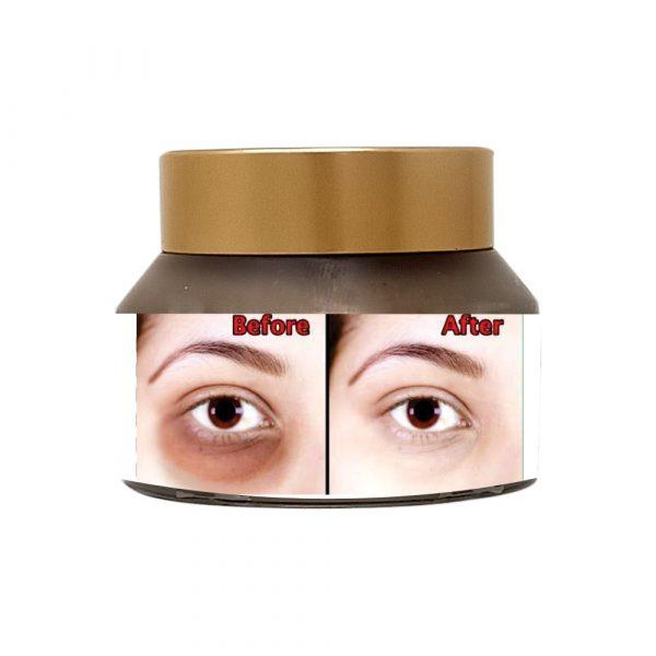 Under-eye-copy3